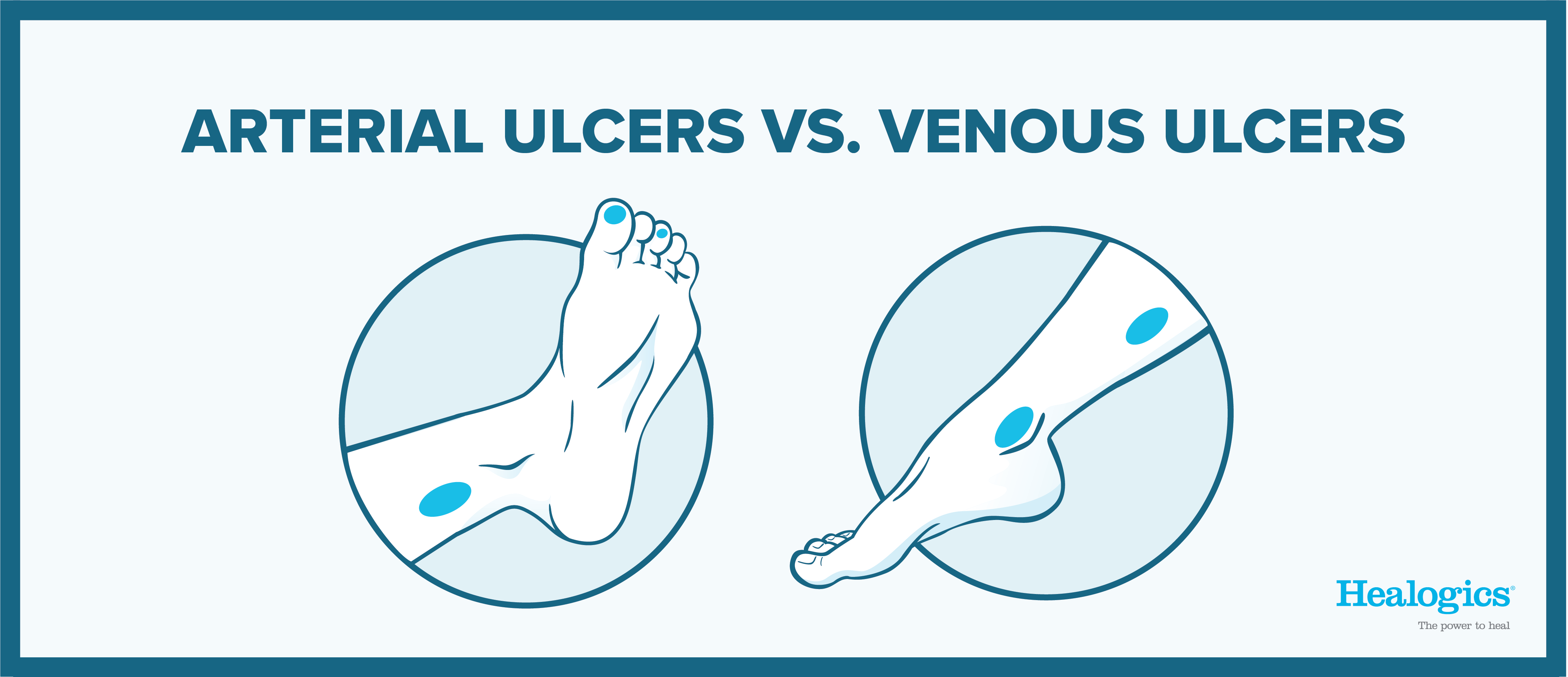 Arterial vs Venous Wounds Icons-05-05