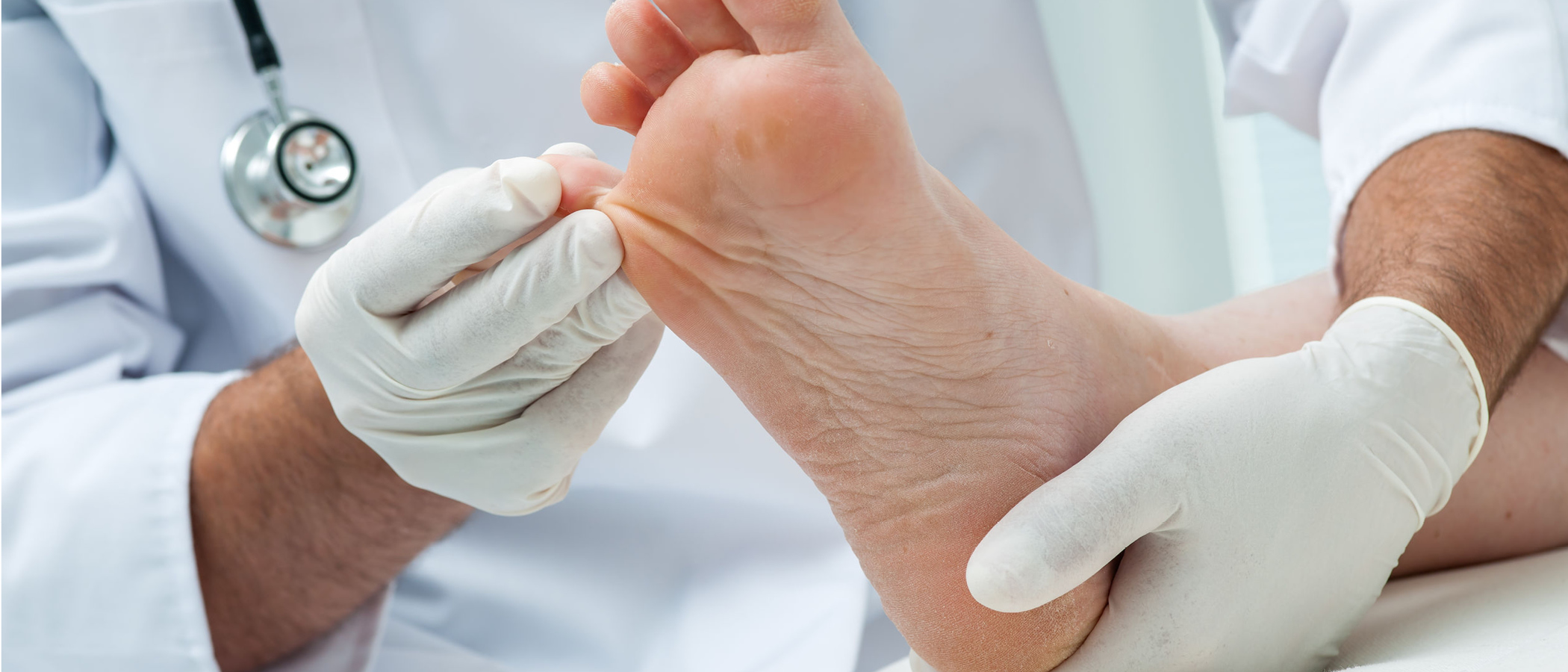 Management of Neuropathy and Related Ulcers